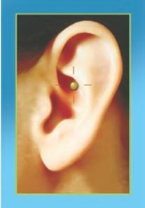 erboristeria-arcobaleno-schio-benessere-auricoloterapia-zerolax-magnete