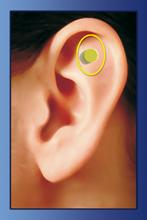 erboristeria-arcobaleno-schio-benessere-auricoloterapia-zerosmoke-magneti