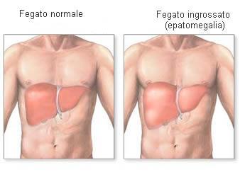 fegato-ingrossato